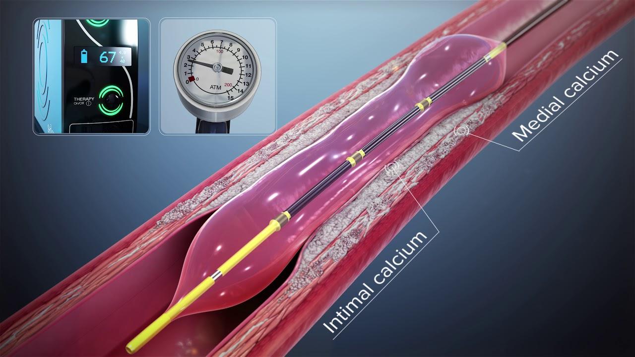 Cardiologia al Fatebenefratelli, premio al nuovo sistema shockwave